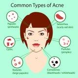 Verschillend type van acne Vectorillustratie met huidproblemen geïsoleerd vrouwengezicht royalty-vrije stock foto