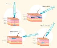 Verschillende types van injecties Royalty-vrije Stock Afbeelding