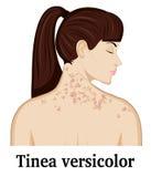 Versicolor illustratie van Tinea Stock Foto's