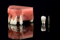 Verstandskies, Implant en tandenmodel Stock Foto's