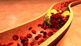Verstopfte Arterie mit Plättchen und Cholesterinplakette Stockfoto
