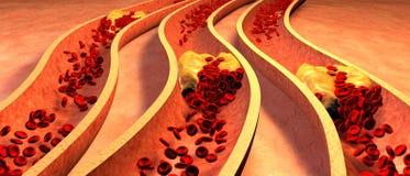 Verstopfte Arterie mit Plättchen und Cholesterinplakette Stockfotos