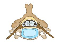 Vertebra disc. Medical illustration for healtcare Royalty Free Stock Photos