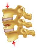 Vertebral compression fracture. Medical illustration of the symptoms of vertebral compression fracture Stock Photography