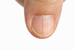 Vertical ridges on the fingernails. Symptoms deficiency vitamins royalty free stock image