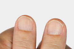 Vertical ridges on the fingernails. Symptoms deficiency vitamins stock photos