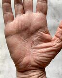 Vertical shot of a hand with a dry cracked skin