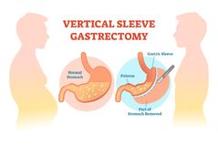Vertical Sleeve Gastrectomy medical vector illustration diagram with stomach surgical cut. Anatomical diagram Stock Photos