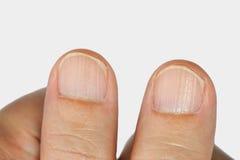Verticale randen op de vingernagels Stock Foto's