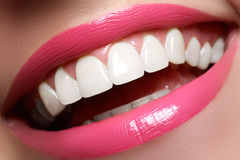 Vervollkommnen Sie Lächeln vor und nach Bleiche Zahnpflege- und weiß werdenzähne Lächeln mit den weißen gesunden Zähnen Gesunde F Lizenzfreie Stockfotografie