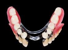 Verwijderbare tandprothese Stock Afbeeldingen