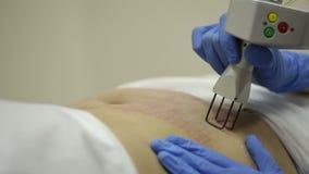 Verwijdering van zwangerschapsstrepen op de buiklaser stock footage