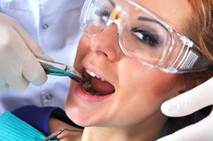 Verwijdert tand stock fotografie