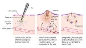Verwonding en ontsteking vector illustratie