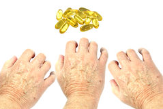Very dry skin on hands. Man's hands reaching for vitamin E oil capsules for a remedy for very dry skin isolated and made into a collage. Health care and beauty Royalty Free Stock Photography