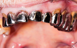 Very old dental bridge Royalty Free Stock Images
