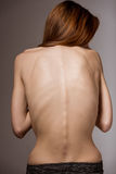 Very thin girl. Turned back and clearly visible spine and ribs close-up Royalty Free Stock Photo