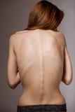 Very thin girl Royalty Free Stock Photo