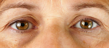Very tired eyes. Great detail macro of a very tired or sick middle age woman, with wrinkles, sun damage, veins in the eyes and dark circles under the eyes all Royalty Free Stock Images