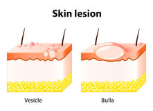 Vesicle and Bulla. Skin lesion Royalty Free Stock Images