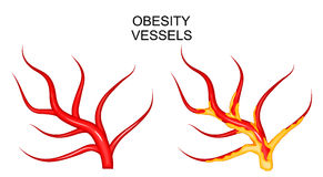 Vessels healthy and obese. Illustration of the blood vessels healthy and obese Stock Images