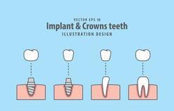 Vetor da ilustração dos dentes do implante & das coroas no fundo azul ilustração do vetor