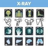 Vetor do grupo do ícone do raio X Varredura da radiologia Osso humano quebrado Símbolo médico Estrutura da fratura Medicina do ho ilustração royalty free