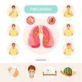 Vettore infographic di polmonite illustrazione vettoriale