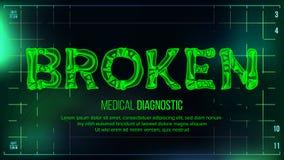 Vettore rotto dell'insegna Priorità bassa medica Rontgen testo trasparente dei raggi x con le ossa Ricerca di radiologia 3D Salut illustrazione di stock