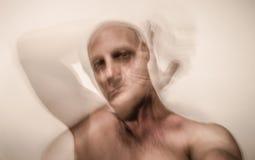 Victime bipolaire d'homme de la schizophrénie images libres de droits