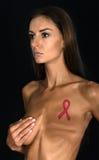Victime de cancer du sein Photographie stock