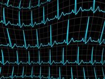 Video di rintracciamento di ECG. ENV 8 Fotografia Stock Libera da Diritti