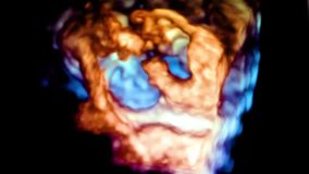Ultrasound 3d cardiac examination. A video with a picture of the heart during an ultrasound 3d study stock footage