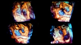 Ultrasound 3d cardiac examination. A video with a picture of the heart during an ultrasound 3d study stock video