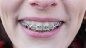 This video is about Young girl with braces on teeth looking at camera and smiling. Close up. Teeth are dirty.  stock video