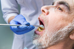 Vieil homme avec de mauvaises dents photographie stock