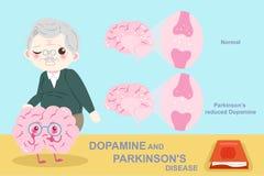 Vieil homme avec la maladie de Parkinson illustration stock