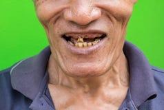 Vieil homme souriant montrant ses dents sans attrait sur le fond vert Photo libre de droits