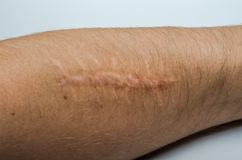 Vieille cicatrice sur le corps de la chirurgie photos stock