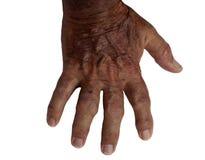 Vieille main mâle avec rhumatoïde Photos libres de droits
