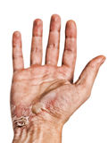 Vieja mano dañada Imagen de archivo libre de regalías