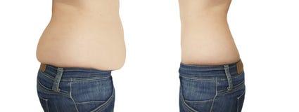 Vientre de la mujer que adelgaza antes después de retocar el liposuction imagen de archivo