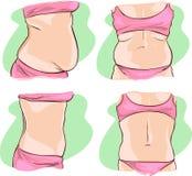 Vientre gordo antes y después del tratamiento Fotos de archivo