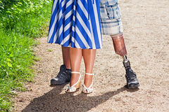 View of a man wearing a prosthetic leg. Close up view of the legs of a disabled men wearing a prosthetic leg following a limb Amputation, standing with a stylish Royalty Free Stock Image