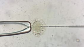 View through microscope at in vitro fertilization process. Amazing macro view through the microscope at process of the in vitro fertilization of a female egg stock video
