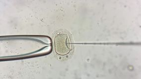 View through microscope at in vitro fertilization process. Astonishing macro view through the microscope at process of the in vitro fertilization of a female egg stock video