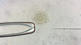 View through microscope at in vitro fertilization process. Breathtaking macro view through the microscope at process of the in vitro fertilization of a female stock footage