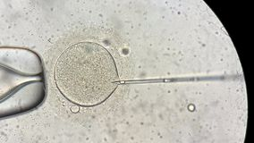 View through microscope at in vitro fertilization process. Marvelous macro view through the microscope at process of the in vitro fertilization of a female egg stock footage