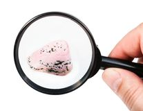 View of rhodochrosite gem stone through magnifier Stock Image