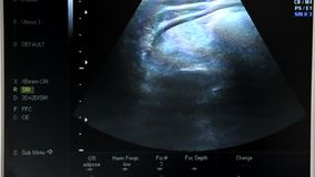 Screen of ultrasound machine. View at screen of ultrasound machine stock footage